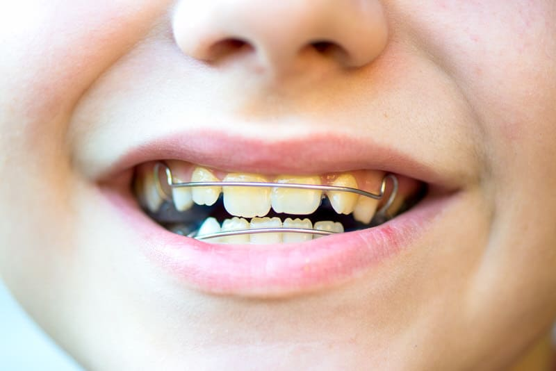 Potential consequences of not treating a toddlers overbite