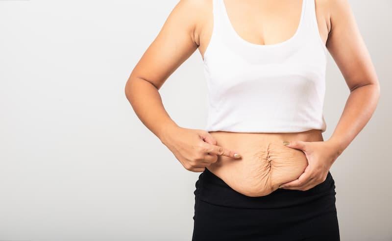 Postpartum woman showing her abdomen skin changes.