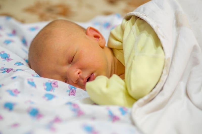 Sleeping newborn baby who has jaundice
